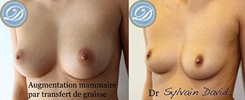 augmentation mammaire par graisse