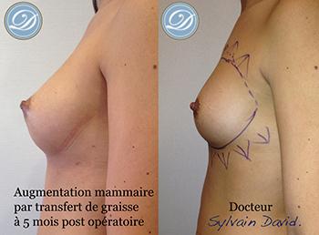 Augmentation mammaire graisse nice