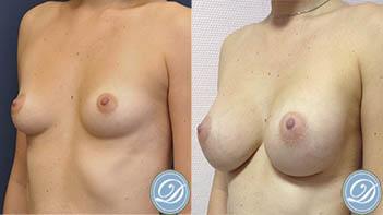 implant mammaire nice