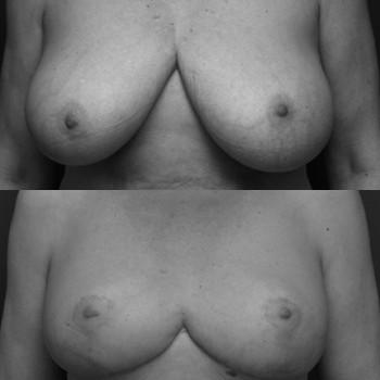 Réduction mammaire Nice Cannes