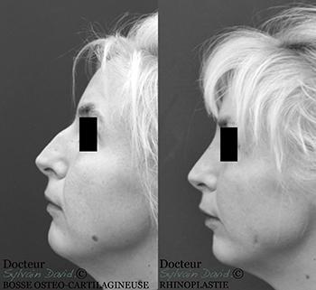 Chirurgie esthétique du nez à Nice alpes maritimes