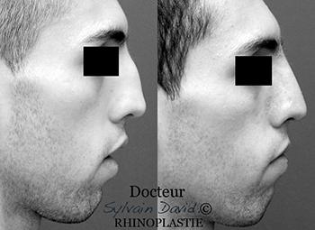 chirurgie réparatrice du nez monaco nice