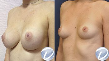 prothèse mammaire nice
