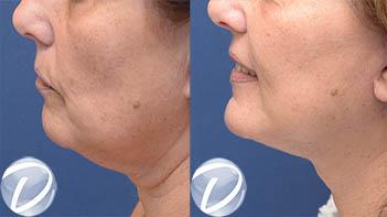 lifitng cervico facial