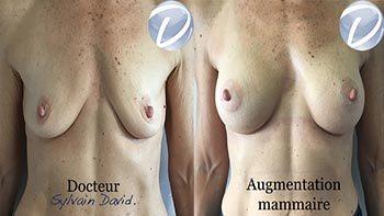 lifting mammaire sans cicatrice