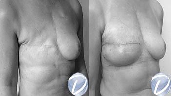 bon chirurgien reconstruction mammaire