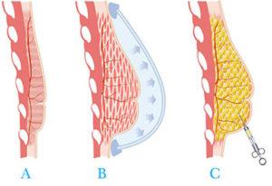 lipofilling augmentation mammaire