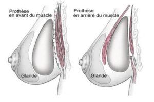 chirurgie esthétique mammaire nice cannes monaco
