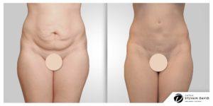 Abdominoplastie Avant Après