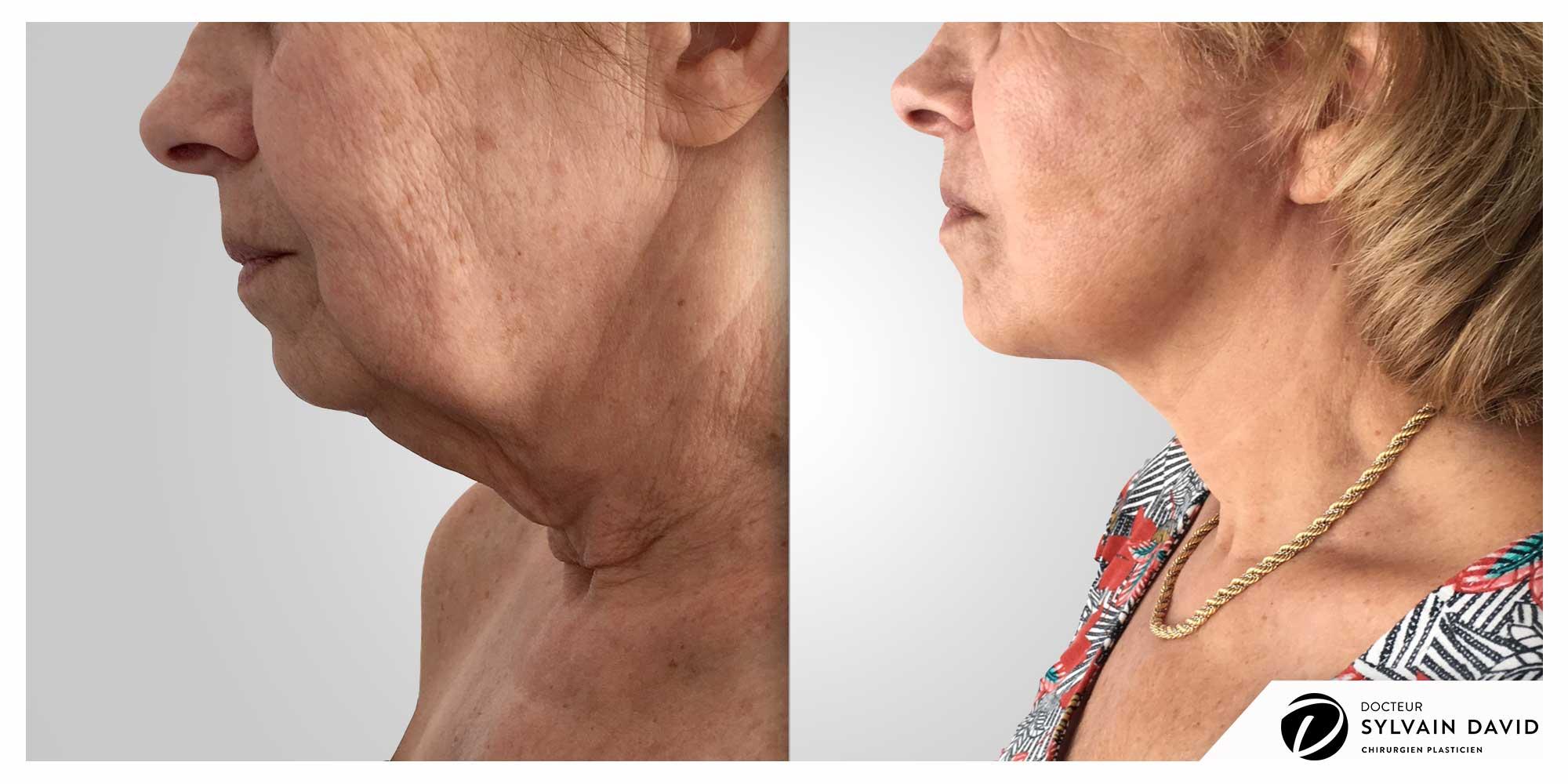chirurgien cervico facial à Nice