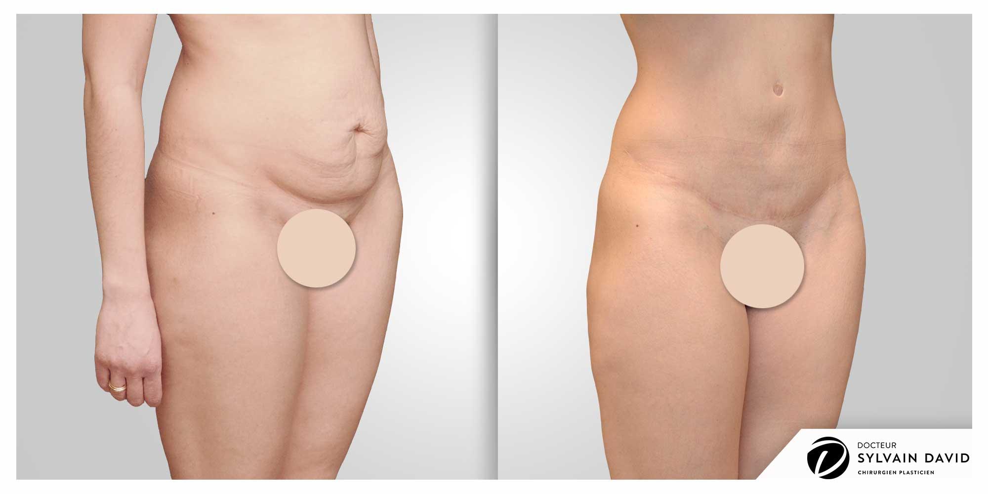 chirurgien abdominoplastie à Nice