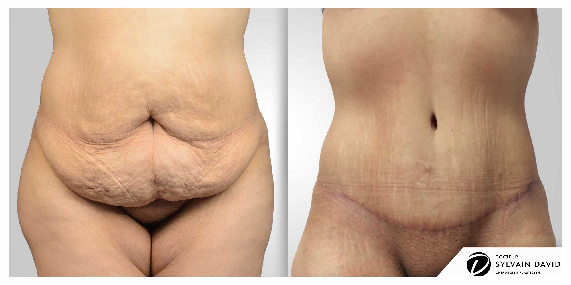 operation abdominoplastie à Nice