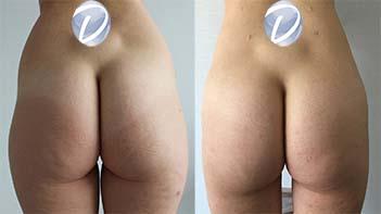 liposuccion hanches nice