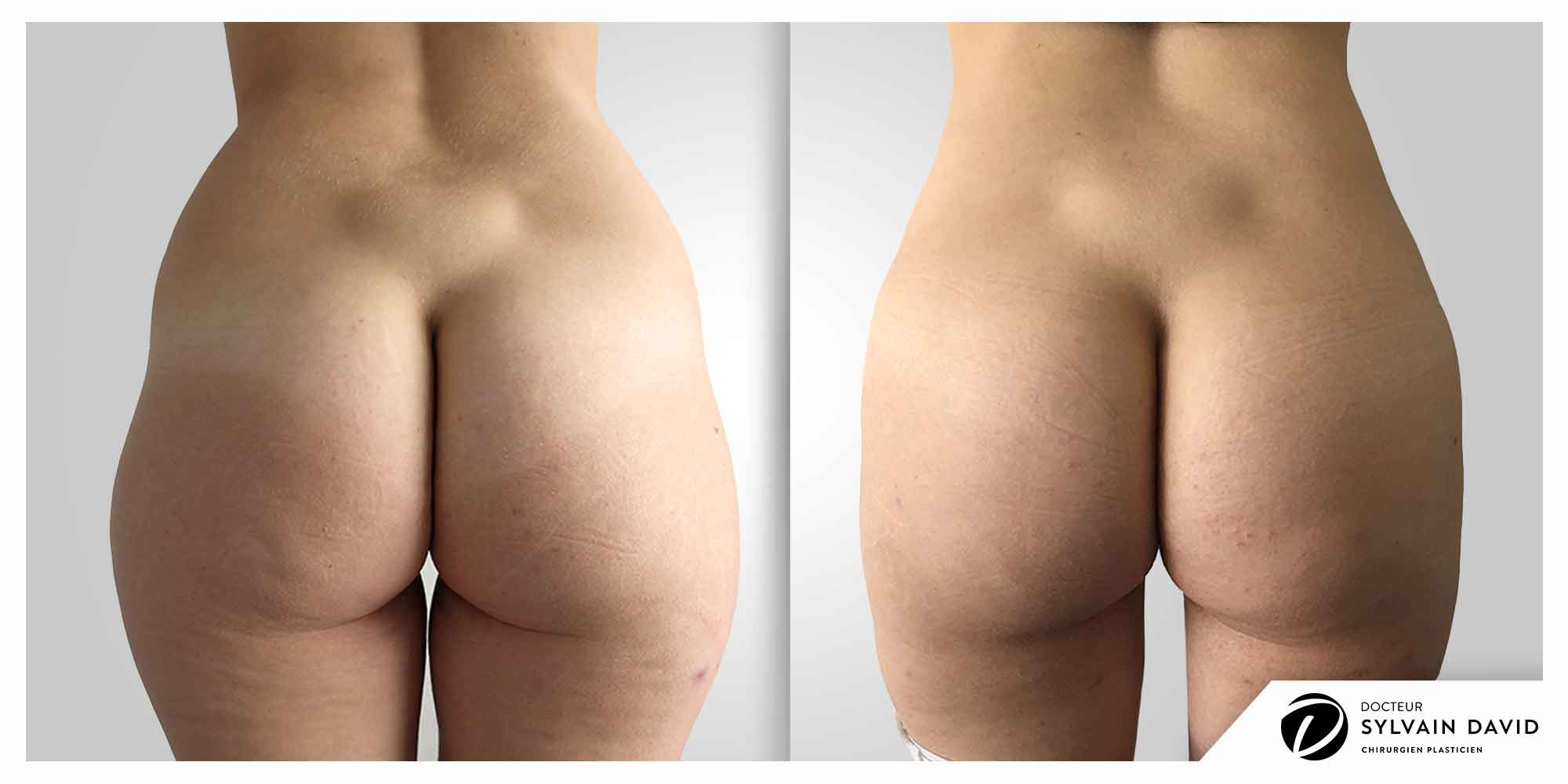 liposuccion operation esthetique à Nice