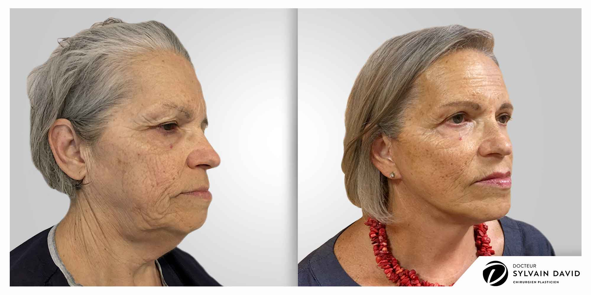 cervico facial à Nice