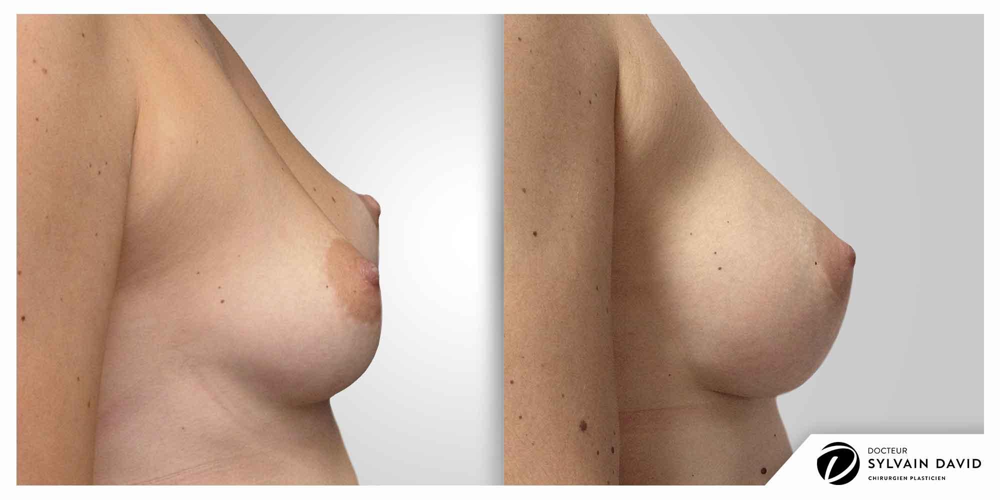 augmentation mammaire à Nice