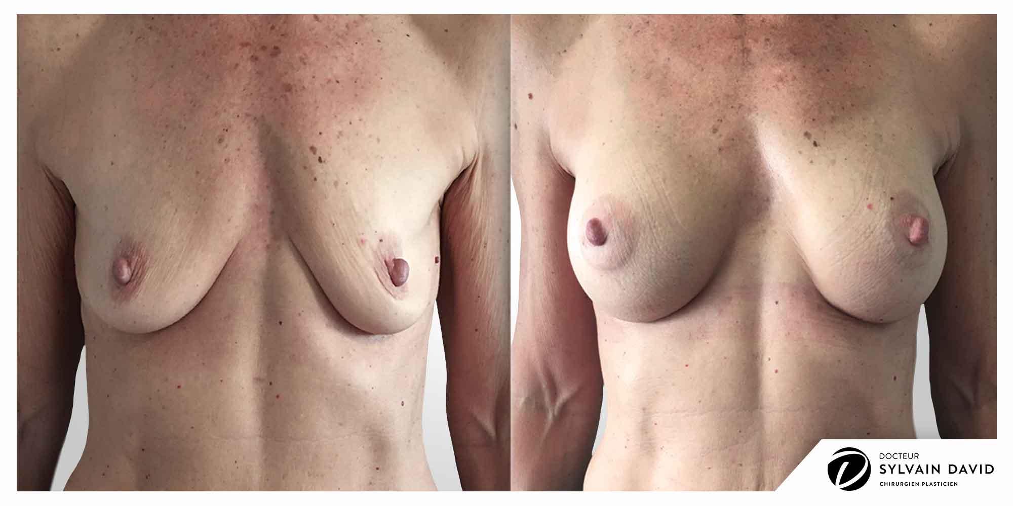 medecine esthetique augmentation mammaire Nice
