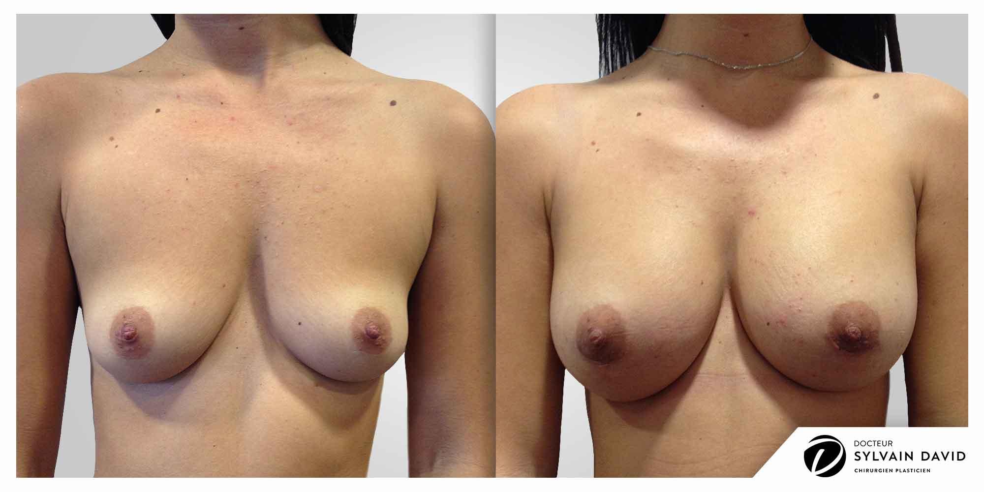 augmentation mammaire à Nice photos avant après