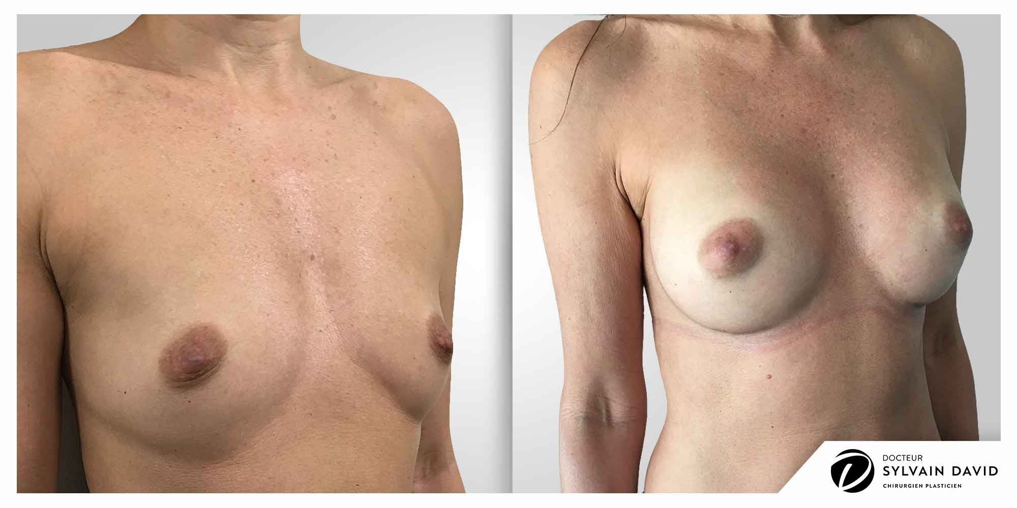 augmentation mammaire femmes à Nice
