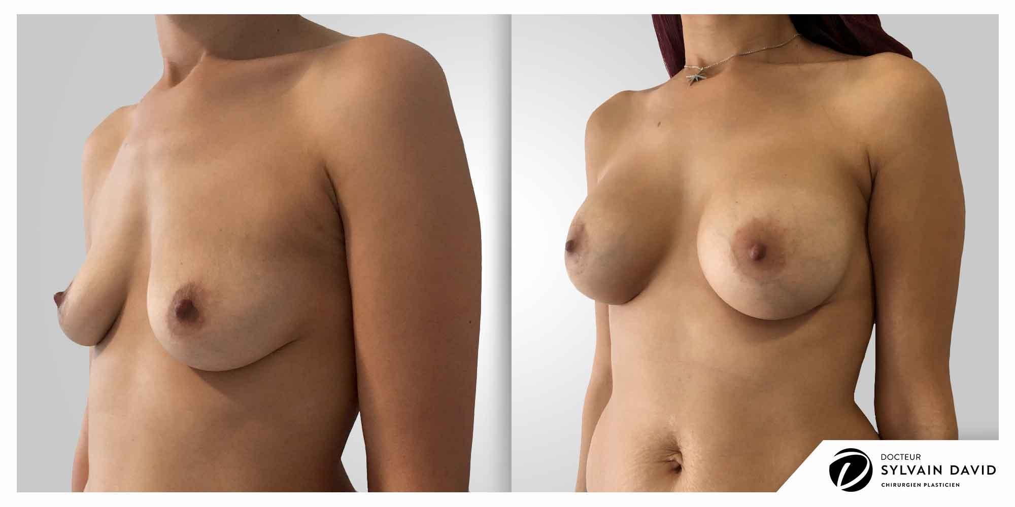 augmentation mammaire esthetique à Nice