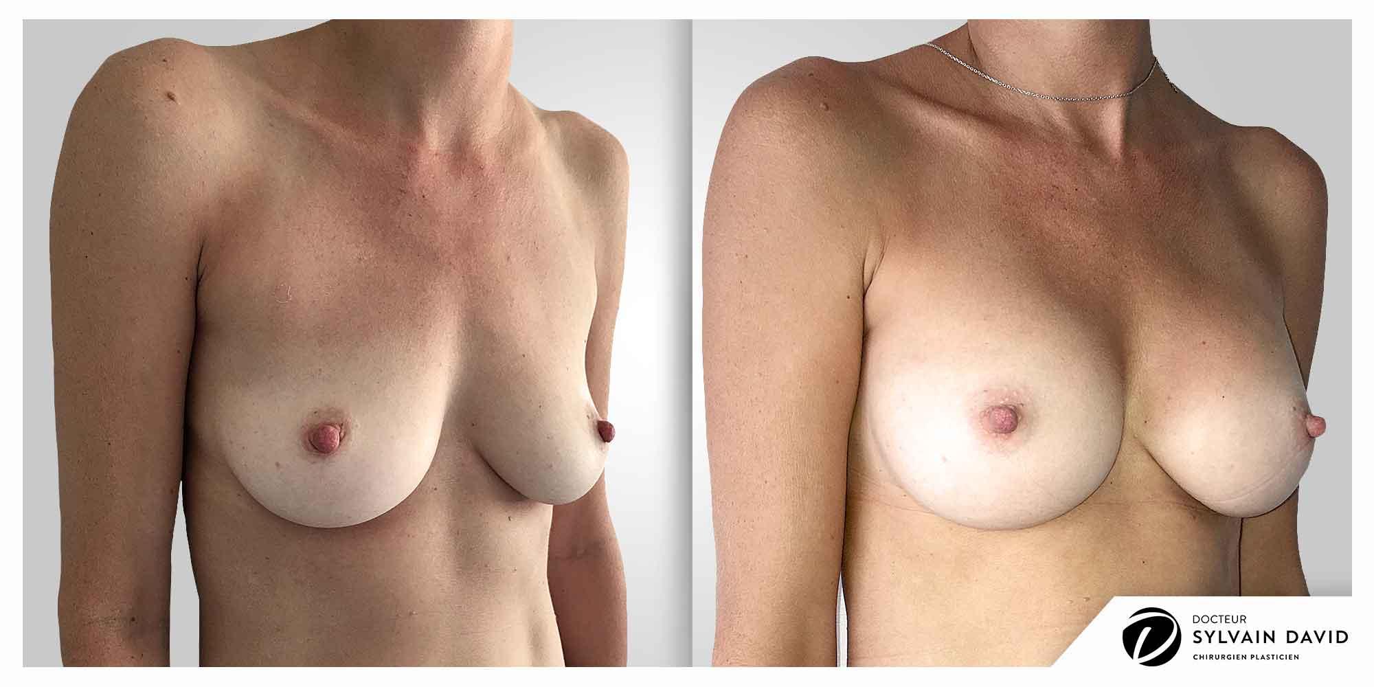 augmentation mammaire esthetique femme à Nice