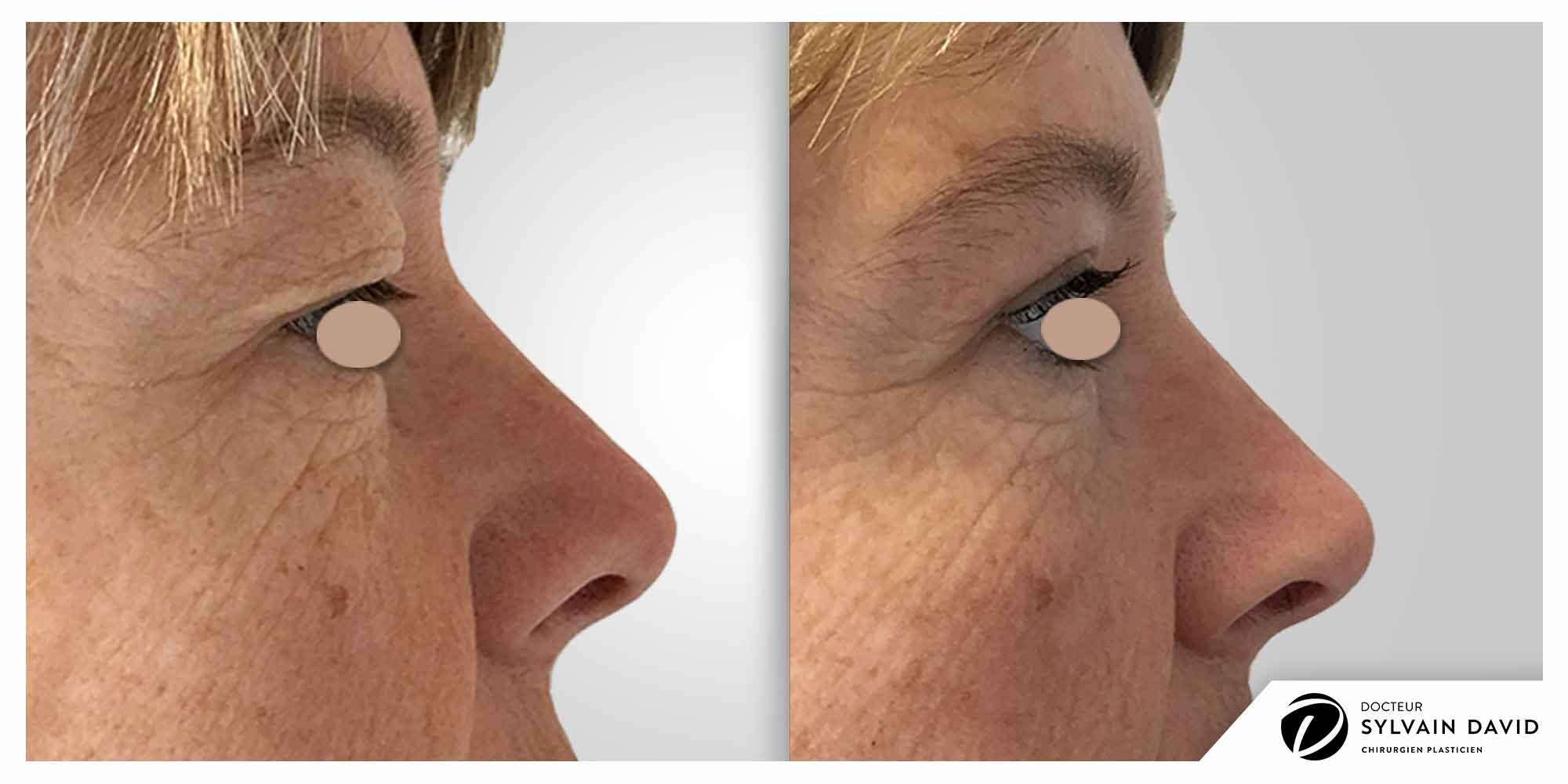 chirurgie esthetique blepharoplastie à Nice