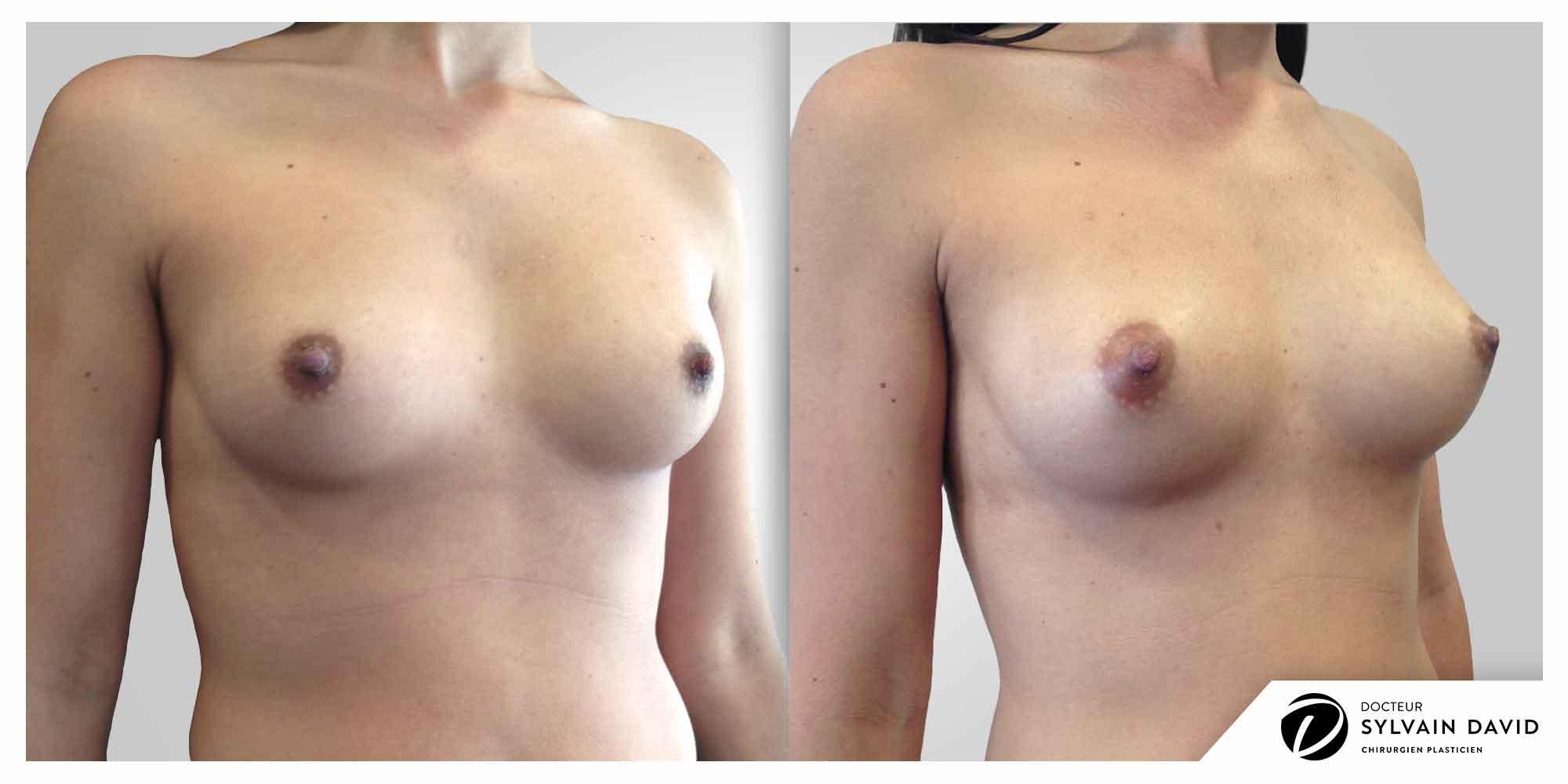 augmentation mammaire à Nice résultat opération