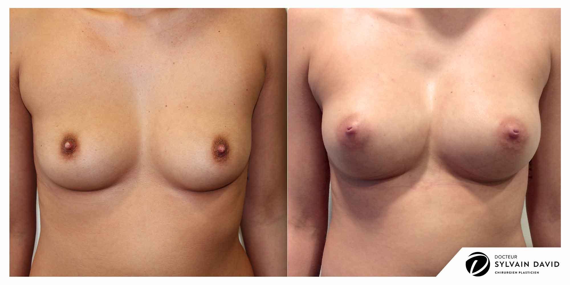augmentation mammaire chirurgie sur Nice