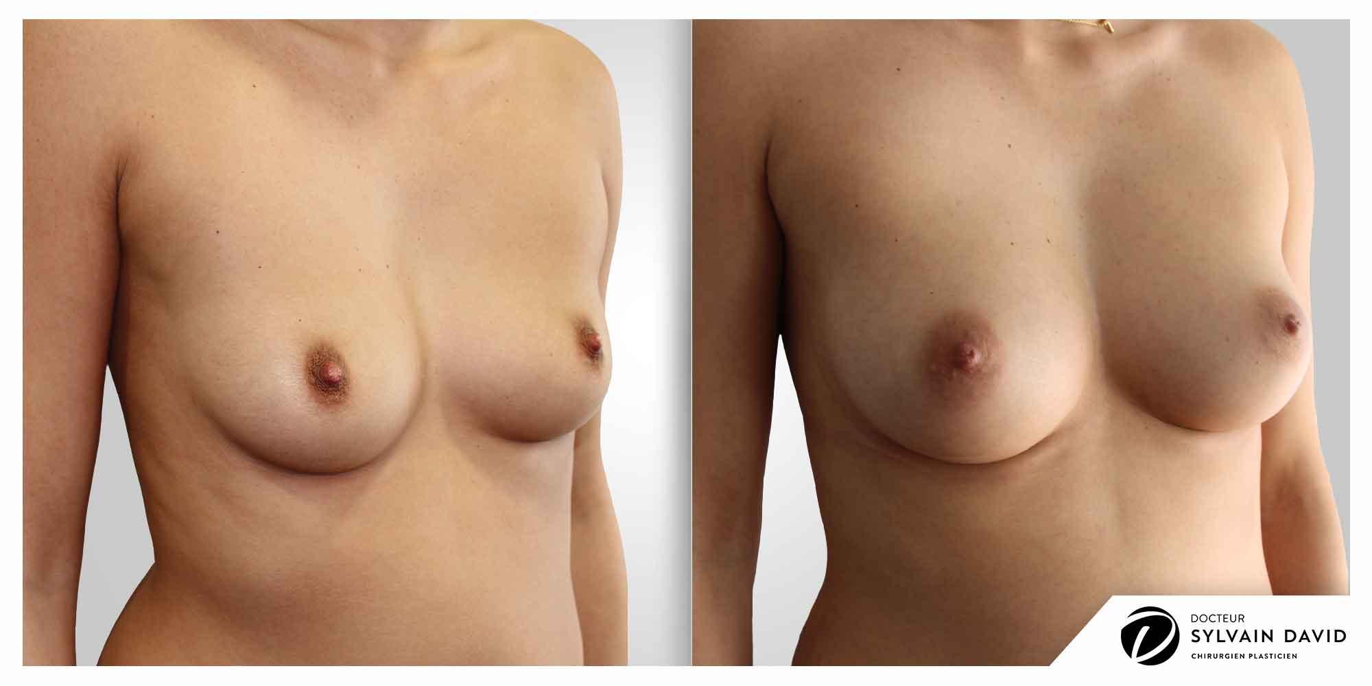 augmentation mammaire operation femme à Nice