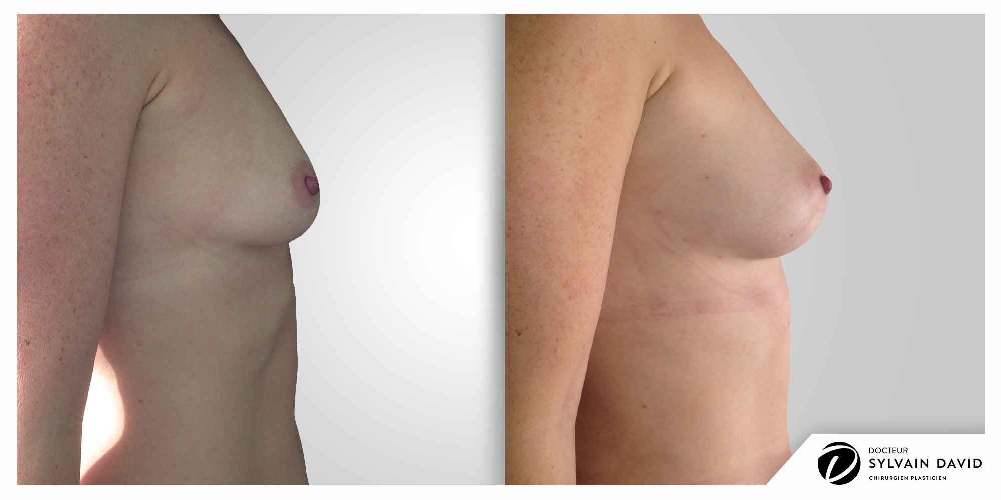 augmentation mammaire femme avant après à Nice