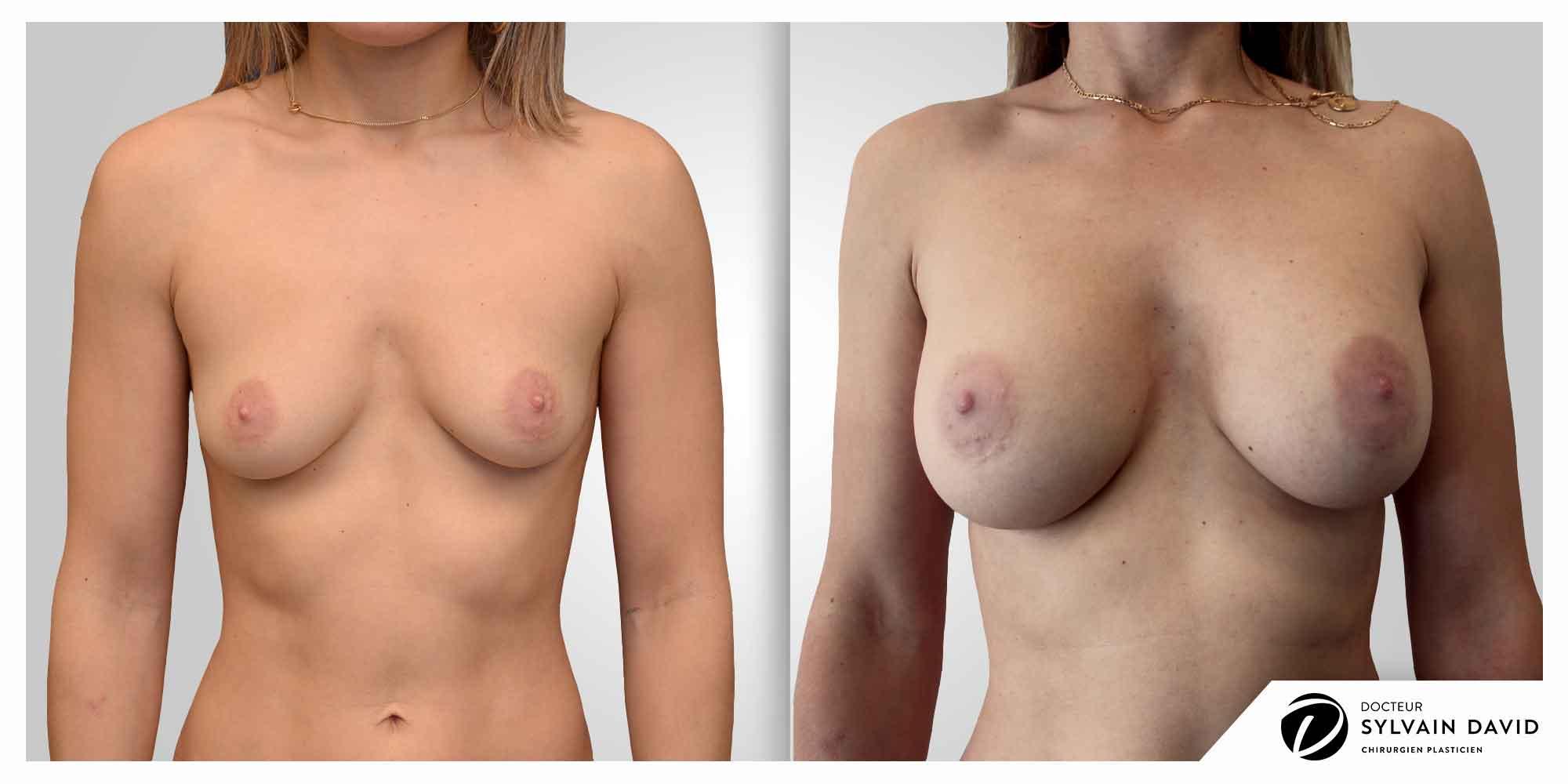 augmentation mammaire chirurgien esthetique Nice