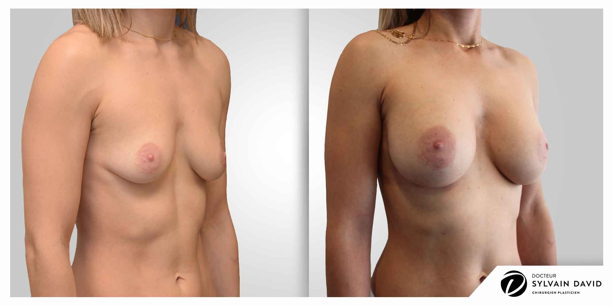 augmentation mammaire chirurgie femme à Nice