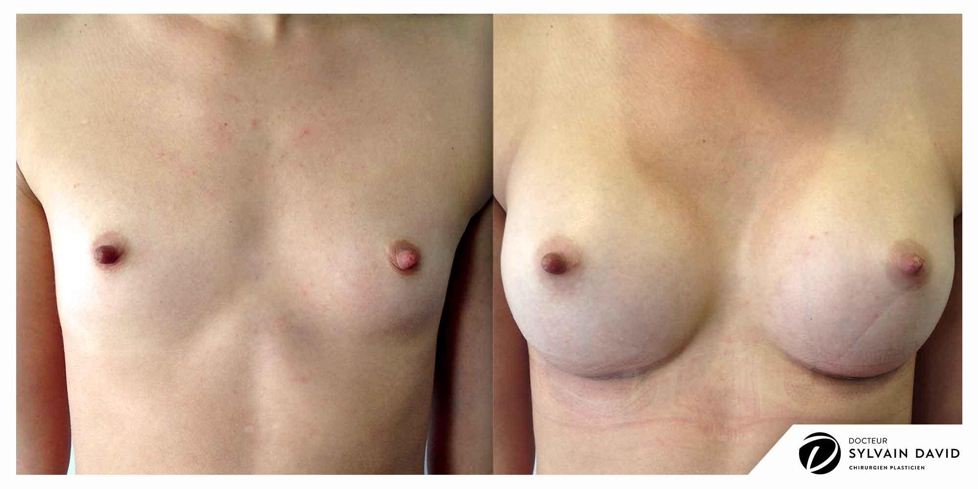 augmentation mammaire femmes sur Nice
