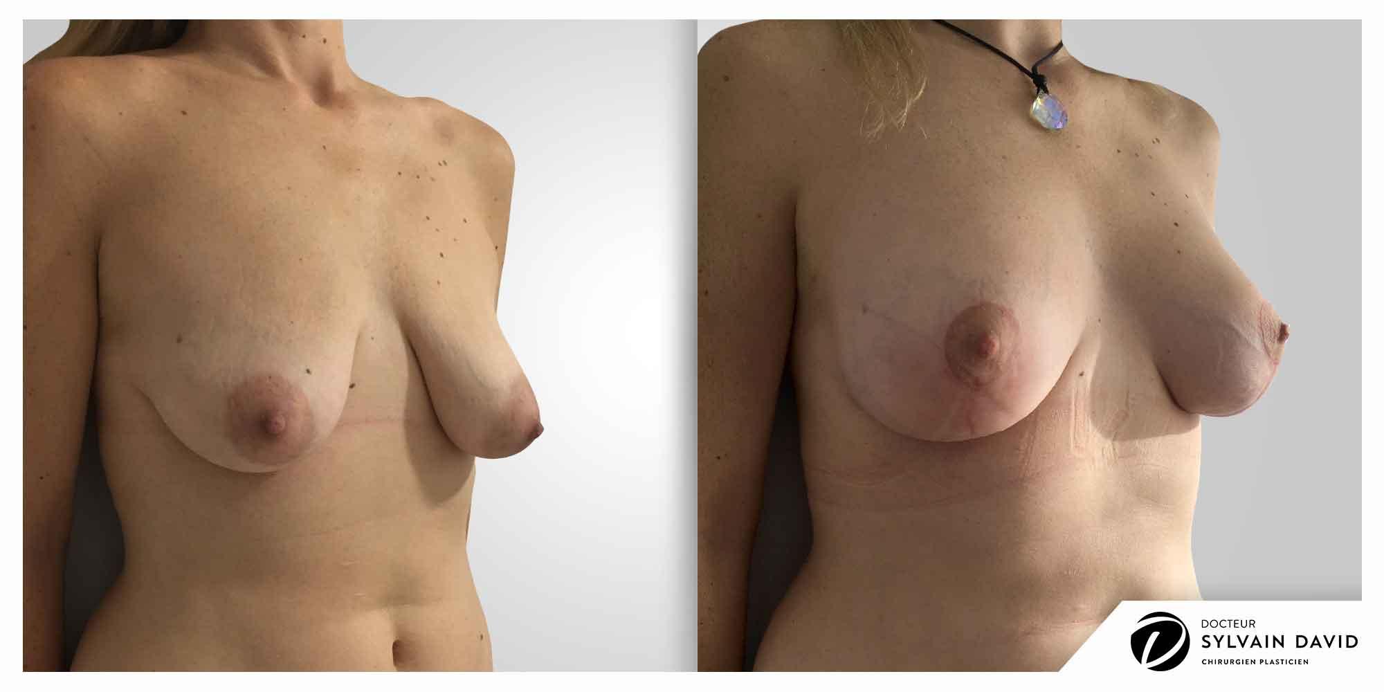 augmentation mammaire lifting à Nice