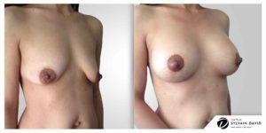 Lifting mammaire Avant Après