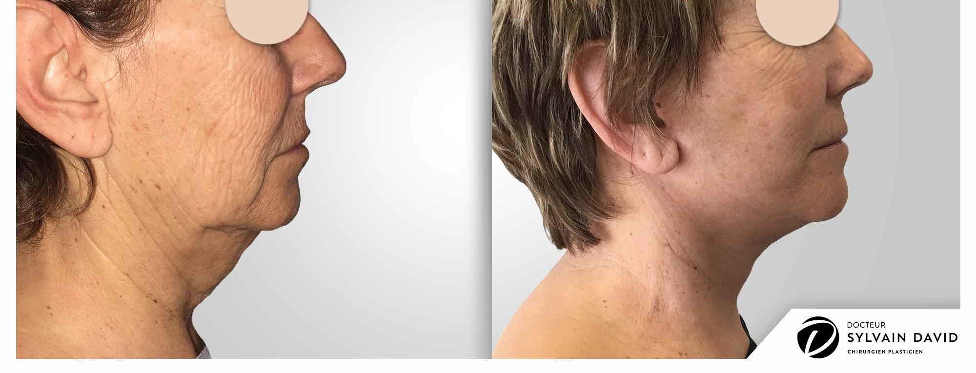 cervico facial lifting sur Nice