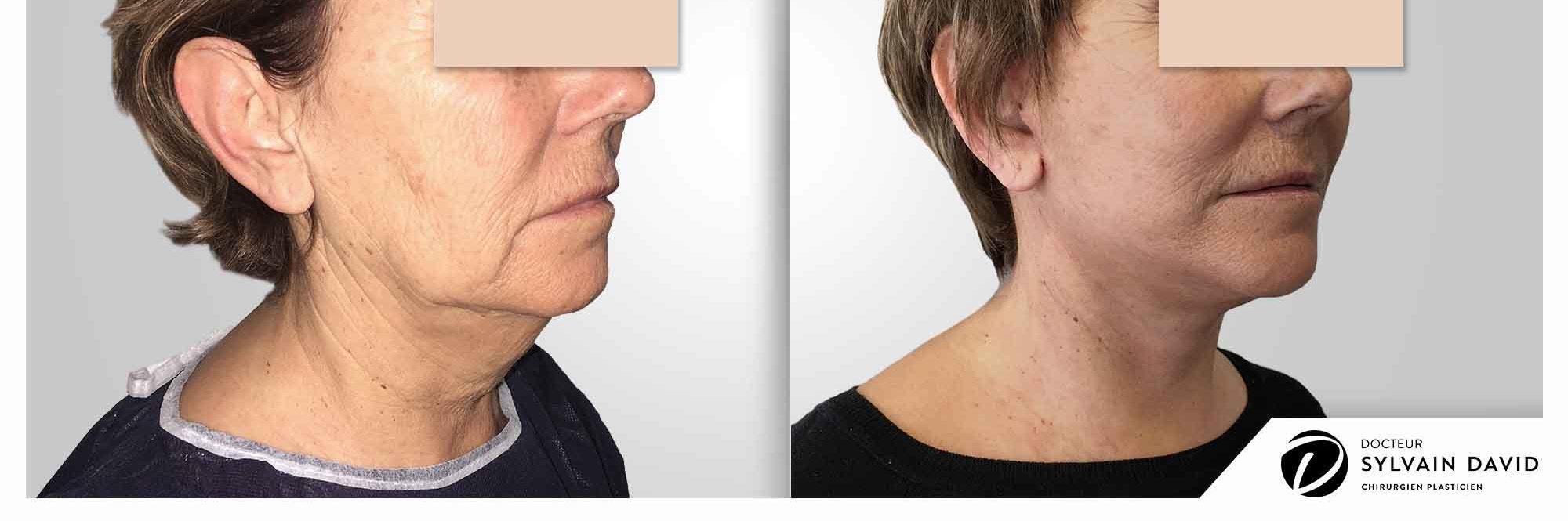 cervico facial lifting à Nice