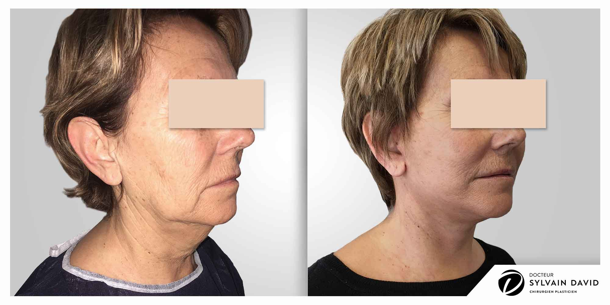 cervico facial lifting à Nice