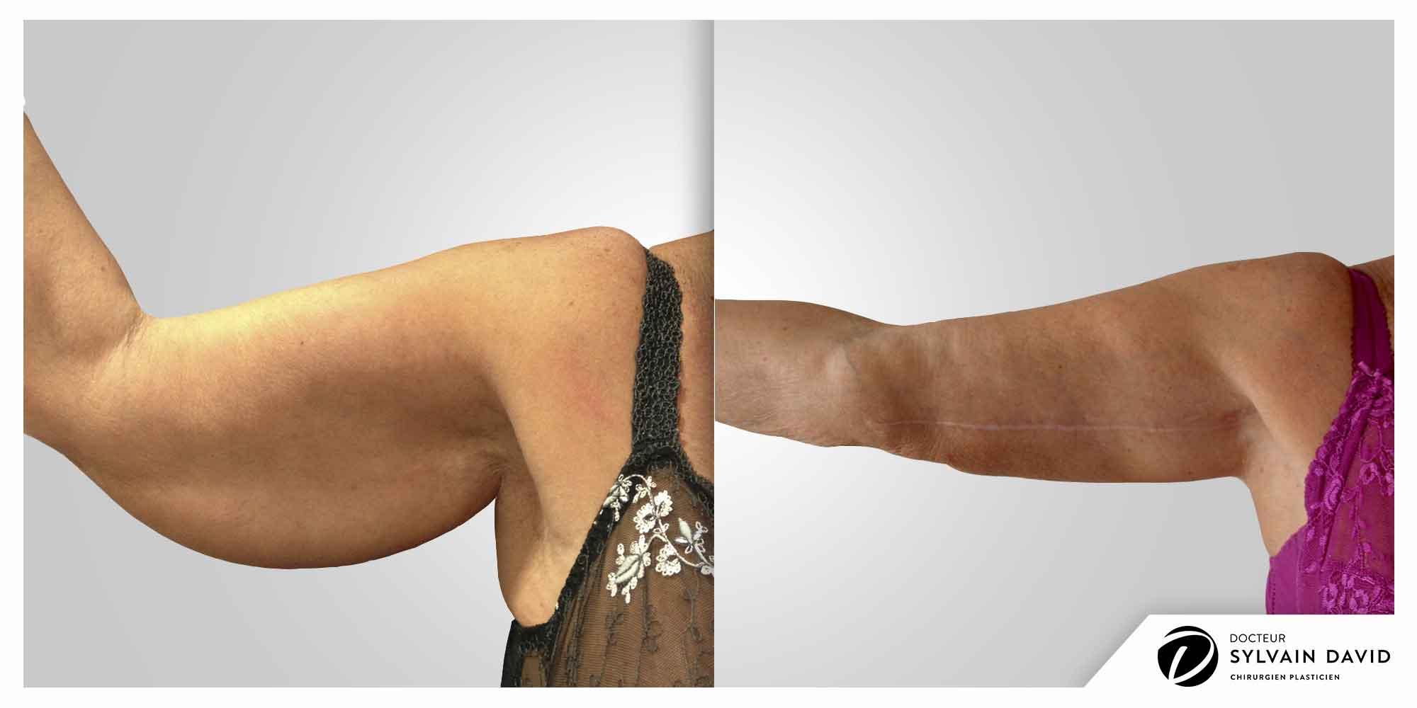 chirurgie esthetique lifting brachial à Nice