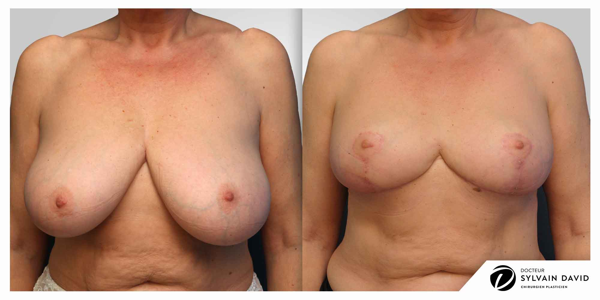 reduction mammaire sur Nice