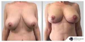 Réduction mammaire Avant Après