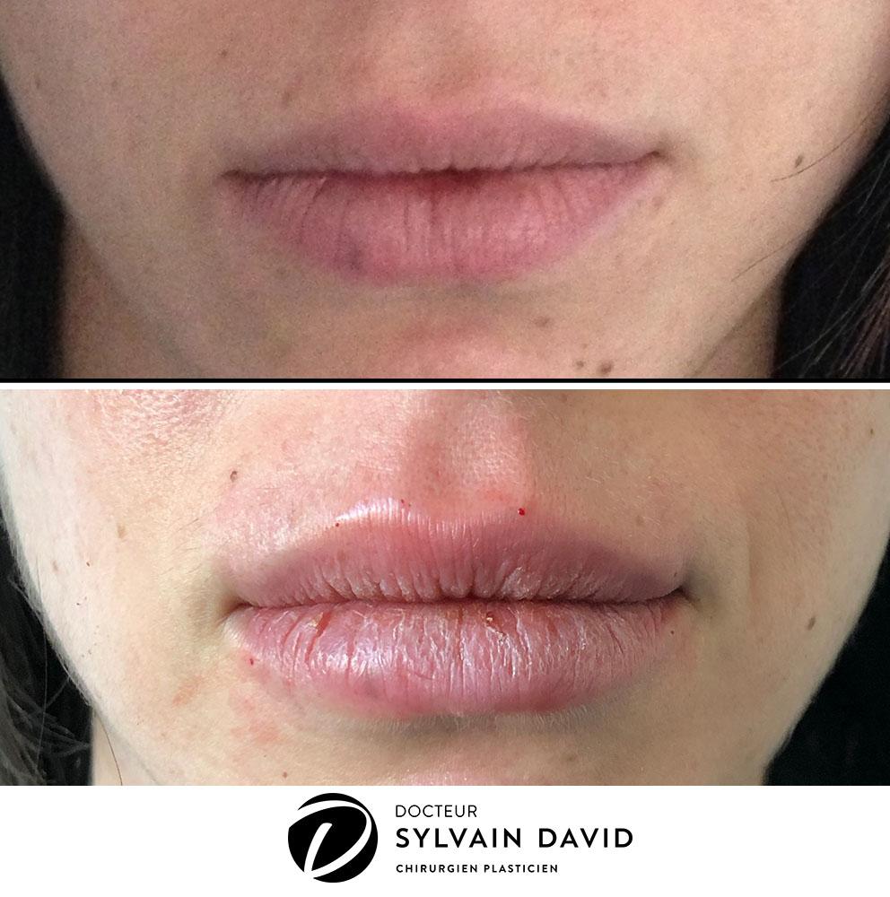 augmentation lèvre