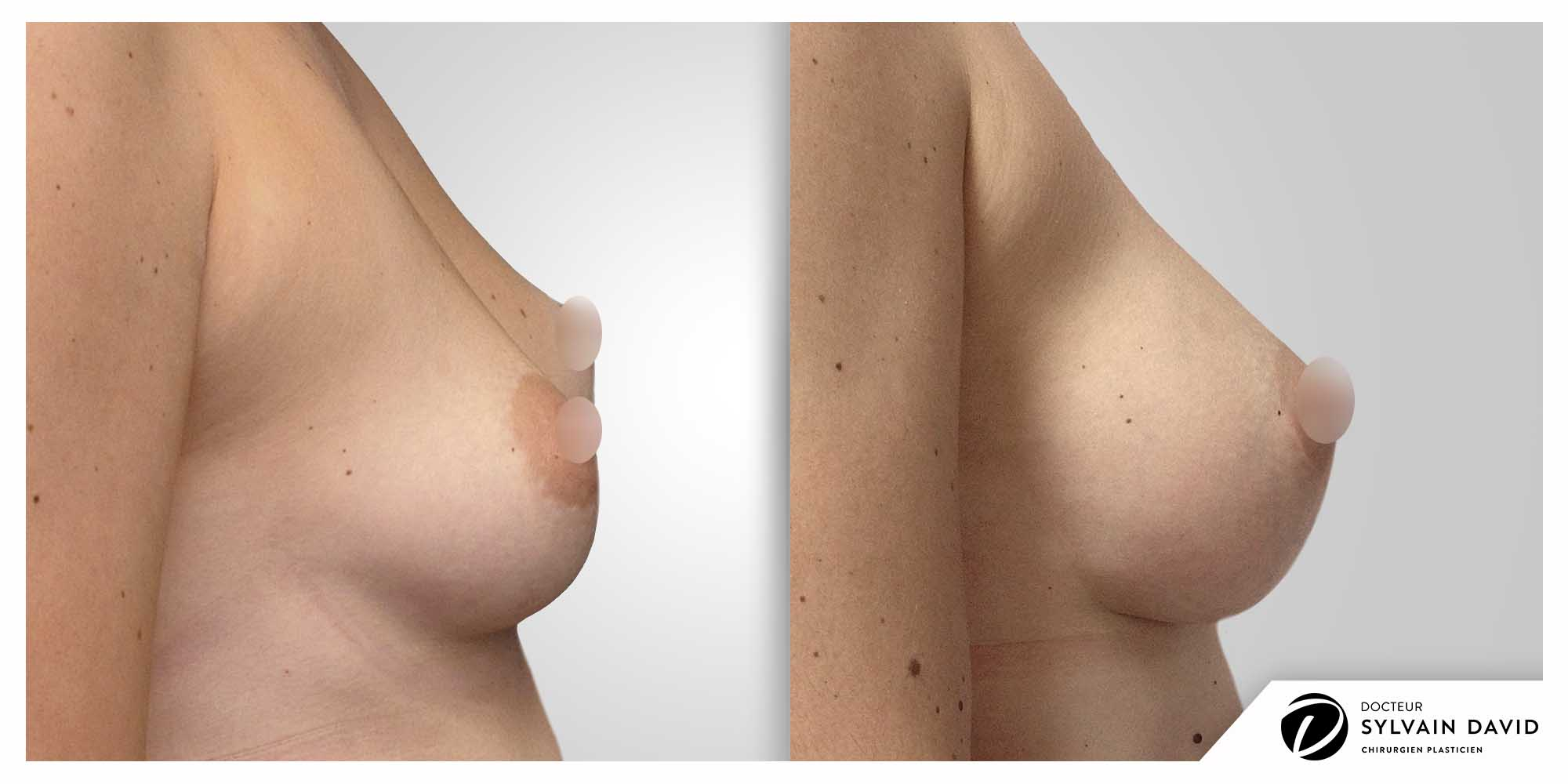 Augmentation mammaire Avant Après