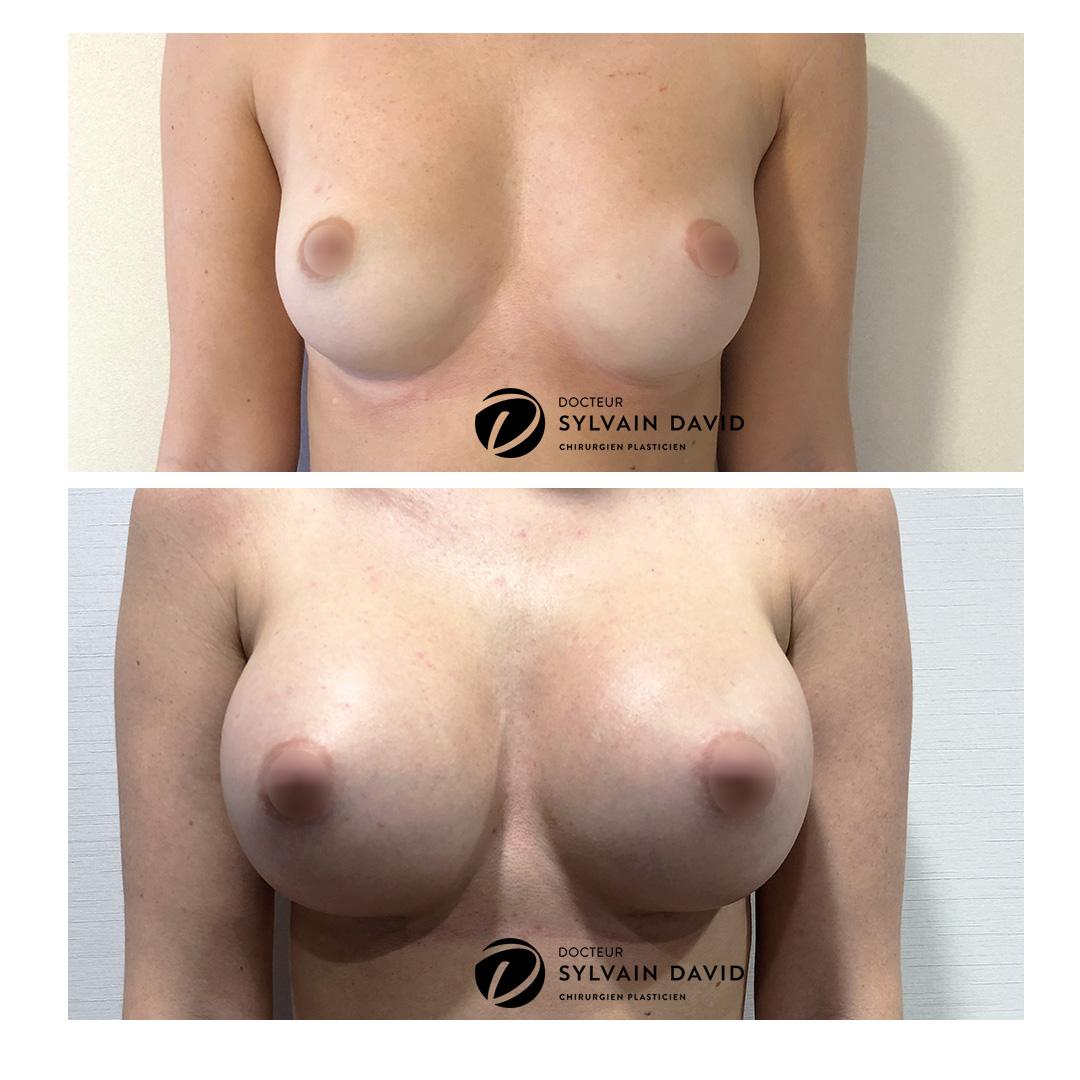 Augmentation mammaire 340 cc