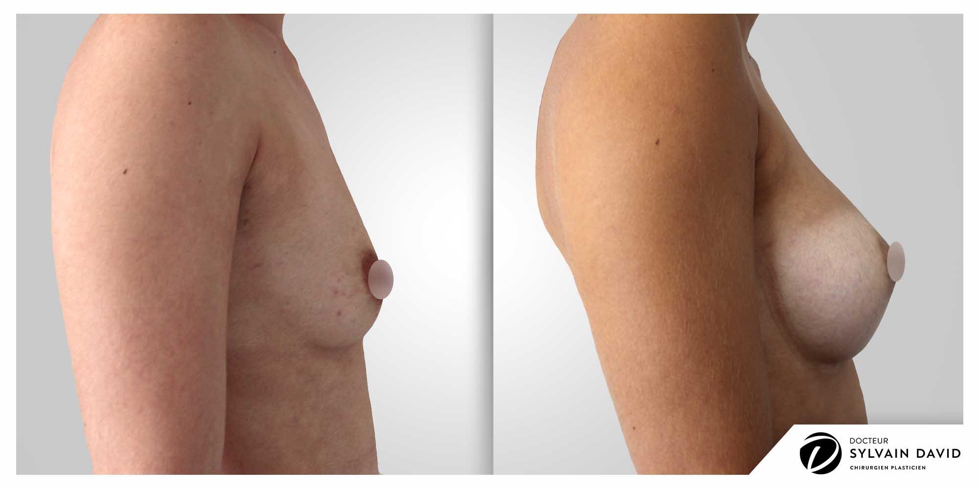 Augmentation mammaire profil